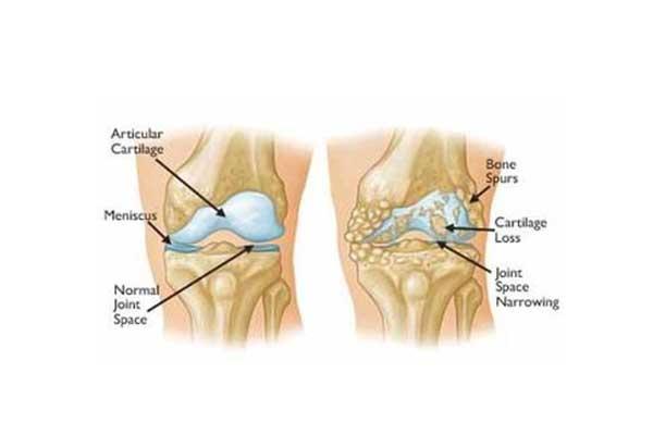 Αρθρίτιδα του γόνατος - Οστεοαρθρίτιδα