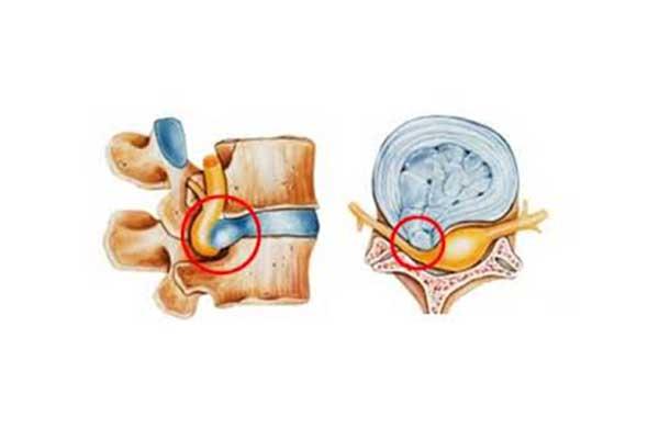 Intervertebral Disc Hernia - Herniated disk
