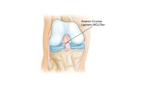 Συνήθεις κακώσεις γόνατος