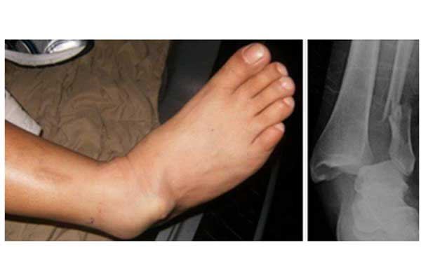 Ankle fractures