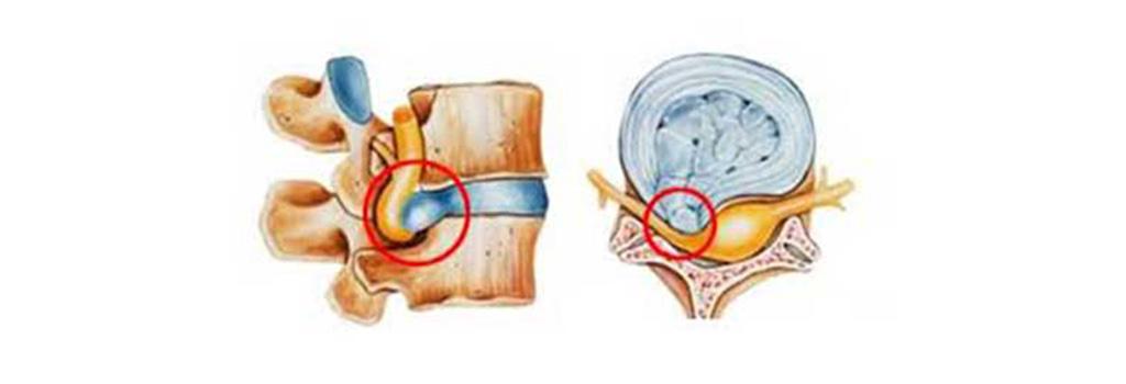 κήλη μεσοσπόνδυλου δίσκου (δισκοκήλη)